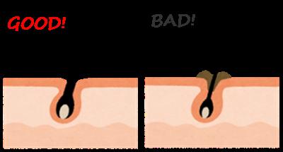 毛穴の皮脂詰まり